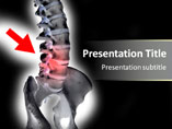 Human Spinal Medical PowerPoint Template