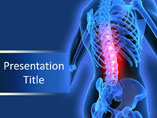 Back Pain Medical PowerPoint Template