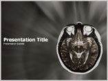 Brain MRI Medical PowerPoint Template