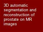 3D automatic segmentation and reconstruction of prostate on MR images powerpoint presentation