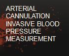ARTERIAL CANNULATION  INVASIVE BLOOD PRESSURE MEASUREMENT powerpoint presentation