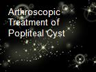 Arthroscopic Treatment of Popliteal Cyst powerpoint presentation