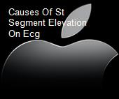 Causes Of St Segment Elevation On Ecg powerpoint presentation