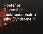 Posterior Reversible Leukoencephalopathy Syndrome in a powerpoint presentation
