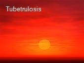Tubetrulosis powerpoint presentation